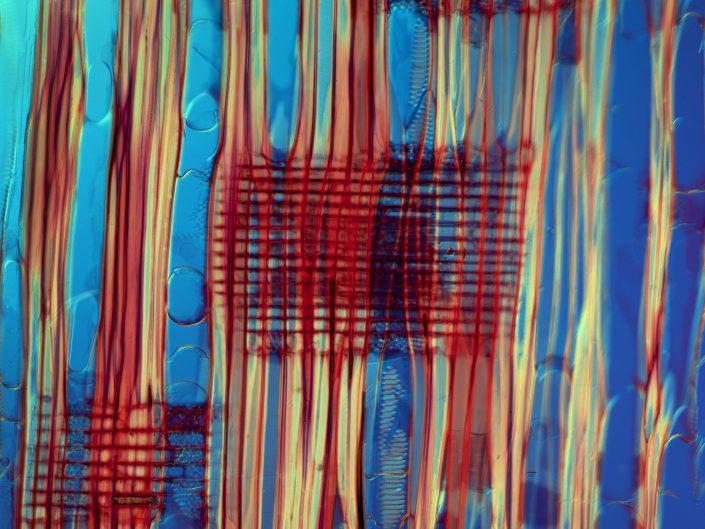 Photomicrograph of radial thin section of Magnolia acuminata